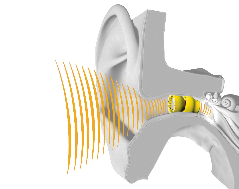 Le Lyric, la « lentille de contact » auditive