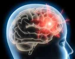 La migraine augmente le risque de surdité soudaine